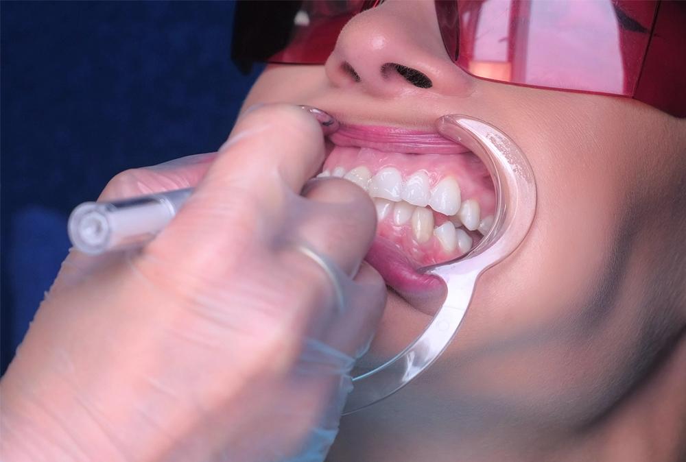 gum contouring - blossom smiles dental