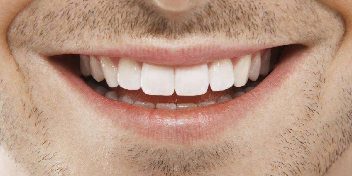 teeth with dental crowns and bridges