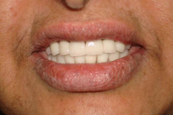 before and after - blossom smiles dental